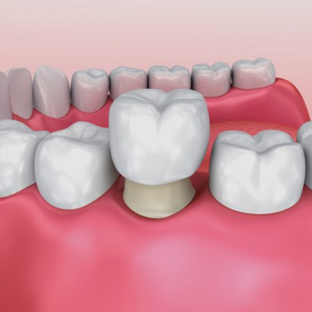 Crowns - Shawlands Dental Care