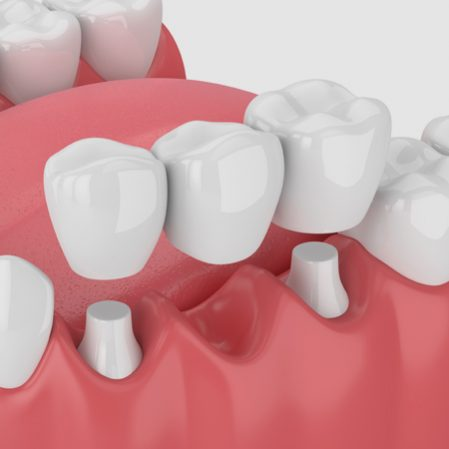 Bridges - Shawlands Dental Care
