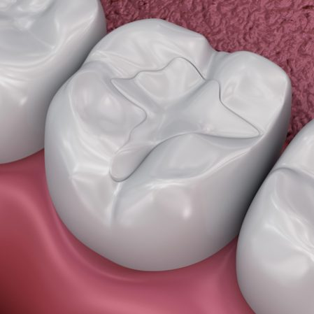 White Fillings - Shawlands Dental Care